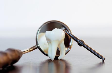 Что нужно помнить о зубах мудрости