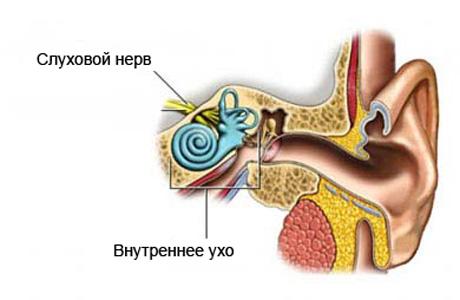 Что такое слуховой нерв