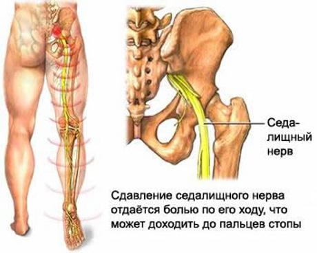 Боли в тазобедренном суставе и пояснице сустав вылез