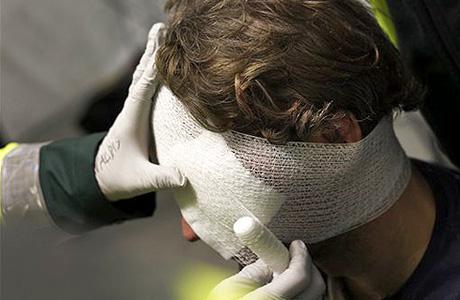 Если была нанесена сильная травма головы, могут быть серьезные осложнения