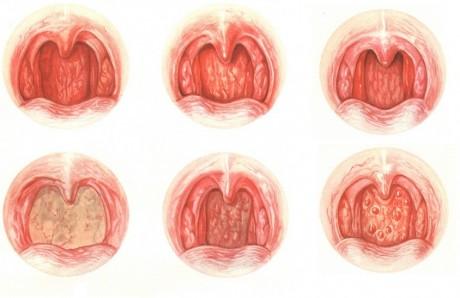 ангина сильная боль в горле что делать
