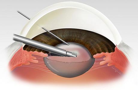 Как удаляют катаракту