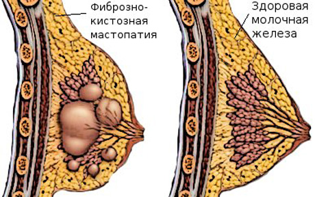 Настойка на перегородках грецкого ореха на водке,