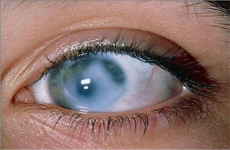 Старческая глаукома на греческом