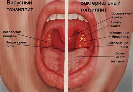 Как лечат тонзиллит