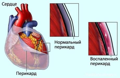 Какие симптомы у перикардита