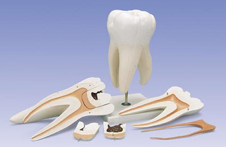 Лечение травм зубов