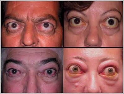 Офтальмопатия Грейвса