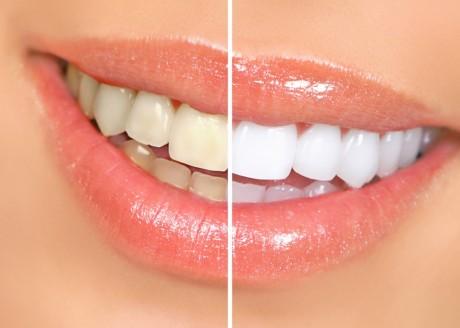 Перед отбеливанием производится оценка состояния зубов
