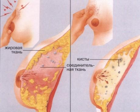 Откуда берется мастодиния