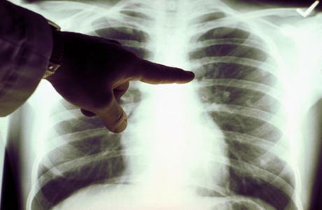 Откуда берется рак легких