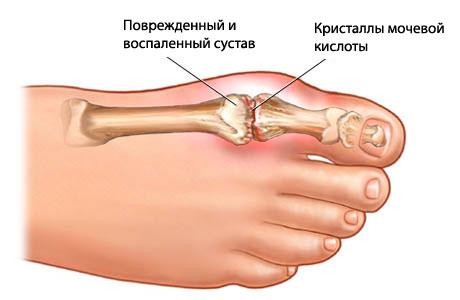 Если ломят суставы ног бугор на суставах пальцев ног