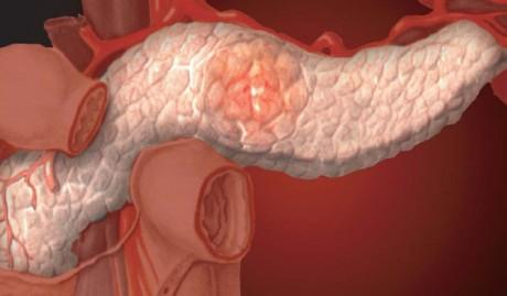 Проблемы поджелудочной железы