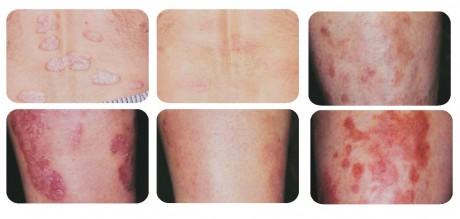 Псориаз у детей фото начальной стадии симптомы лечение