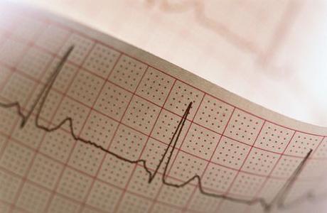 Разновидности хронических болезней сердца