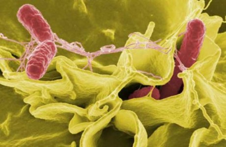 Инфекционные и паразитные болезни