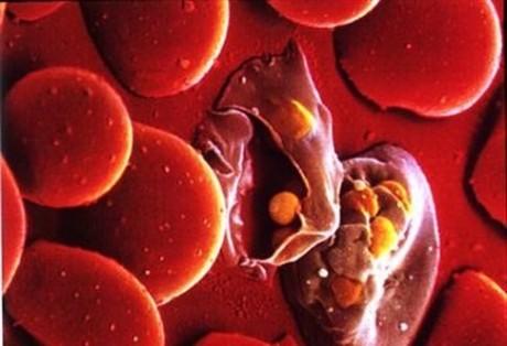 Самые распространенные протозойные болезни
