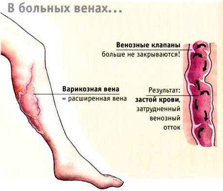 Симптомы варикозной болезни вен