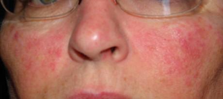 Болезни кожи и подкожной ситчатки