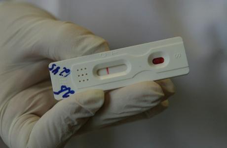 домашние тесты на ВИЧ