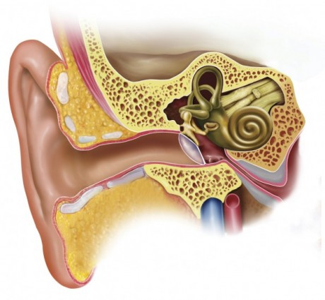 Другие уродства ушной раковины