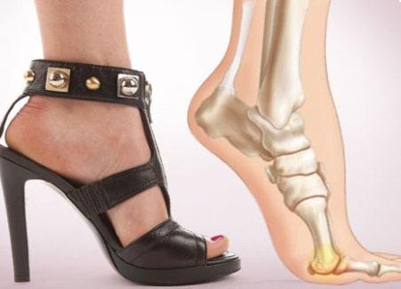 Kas on võimalik eemaldada kivid oma jalgu. Ekspertarvamus