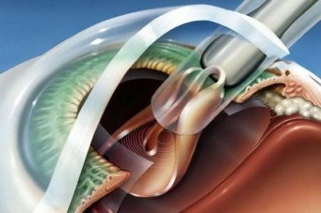 Как проходит операция по пересадке роговицы
