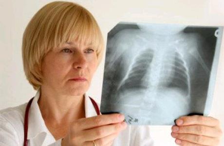 Больных туберкулезом спасут немецкие фильтры
