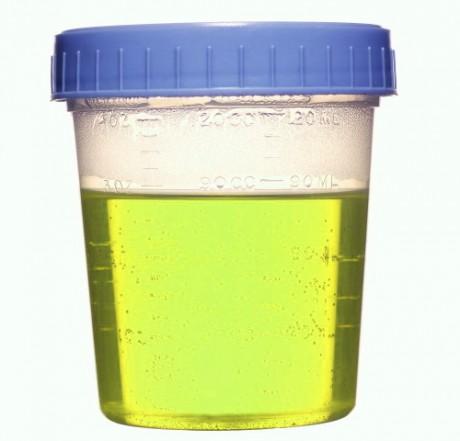 Моча при беременности зеленая