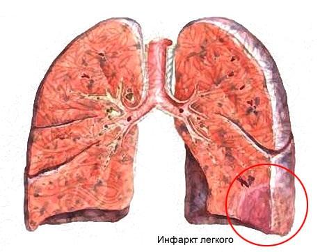 Патогенез облитерирующий атеросклероз сосудов нижних конечностей
