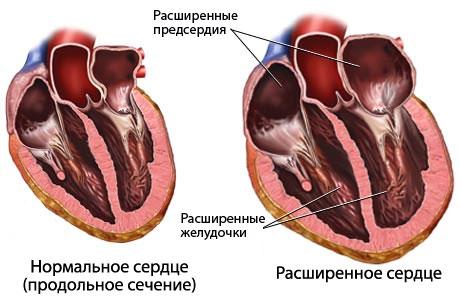 Как диагностируют сердечную недостаточность