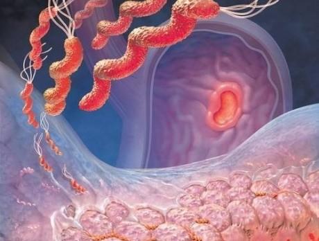 Инфекционные и паразитарные болезни