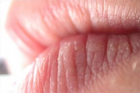 Болезни кожи и подкожной клетчатки