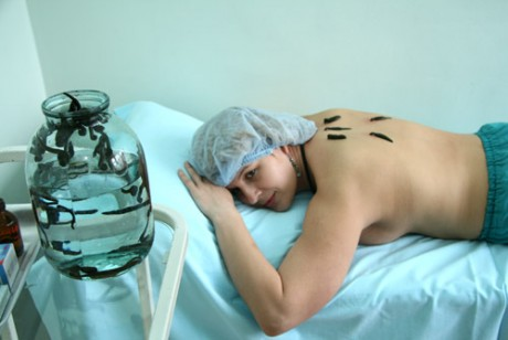 Какова процедура гирудотерапии