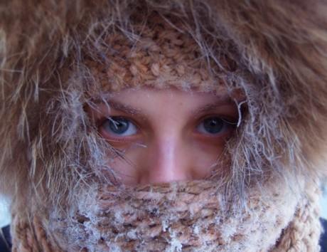 Холодная аллергия