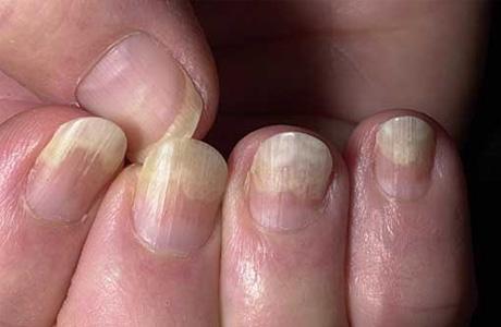 О чем могут рассказать ногти