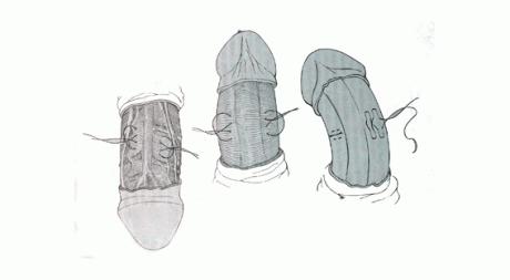 Операция Несбита (деформацию устраняют, бляшку не удаляют)