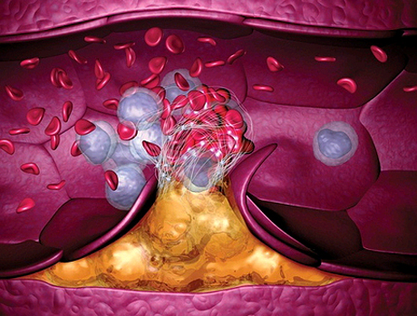 Последствия венозной гипертонии
