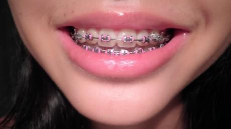 Брекеты мешают вам достичь труднодоступных областей зубов при их очистке