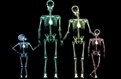 Разработан материал для печати костей на принтере