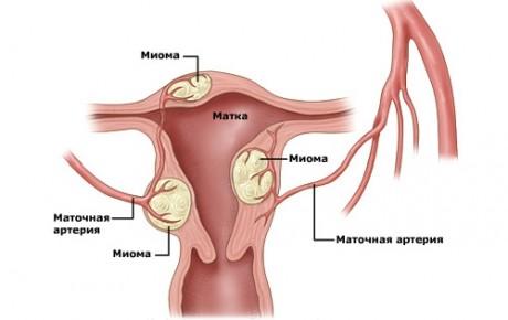 Что такое фибромиома