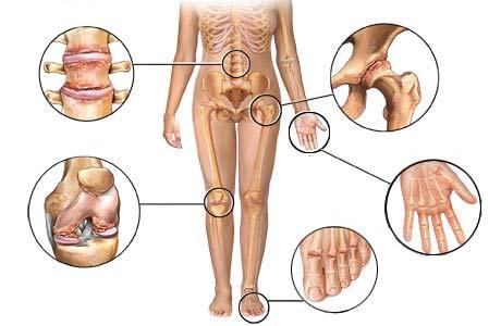Конфигурация суставов деликатная артрит коленного сустава симптомы и лечение у детей