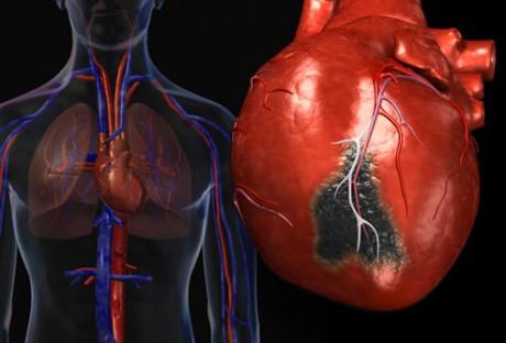 Что такое постинфарктный кардиосклероз