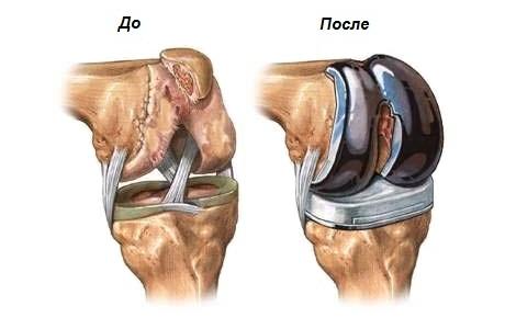 Одесса лечение туберкулеза тазобедренного сустава упражнения в бассейне для лечения тазобедренных суставов