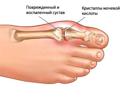 болезни костно мышечной системы