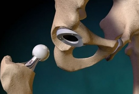 Видео эндопротезирования тазобедренного сустава история болезни по терапии остеоартроз коленного сустава