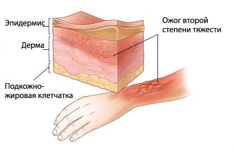 травмы и отравления