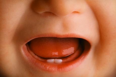 Как режутся первые зубки