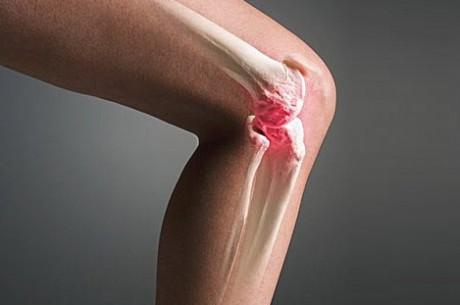 Воспаление суставов: лечение народными средствами.