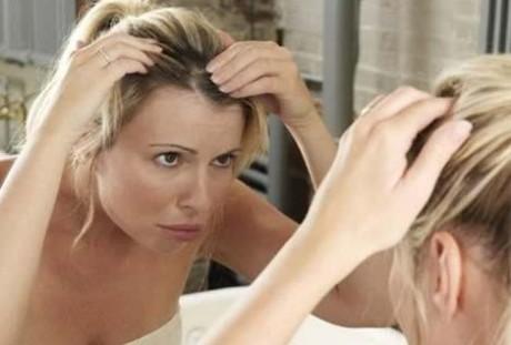 Четыре главных проблемы кожи головы и их лечение